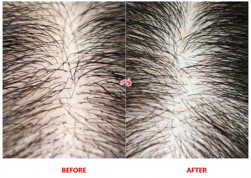 Dr.FORHAIR防脱洗发露,蓬松发根改善头皮角质解决脱发严重问题